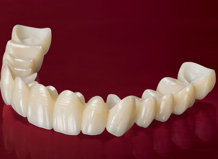 Full Zirconium Crowns